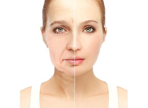 Facelifting, Gesichtsstraffung