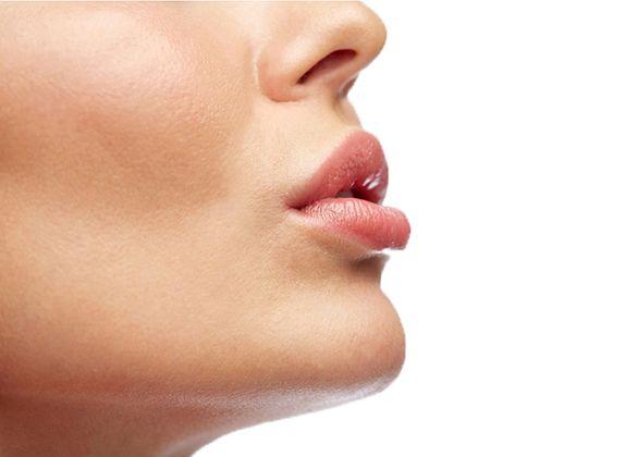 Lippenauffüllung, Lippenvergrösserung